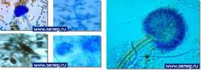 Плесневые и деревоокрашивающие грибы под электронным микроскопом